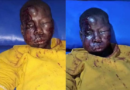 Man Arrested For Disfiguring His Nephew Face (Photos)