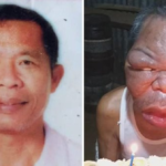 This Man's Face Swell Three Times its Size After Suffering Mysterious Disease (Graphic Image)